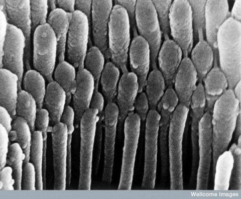 Células ciliares da orelha